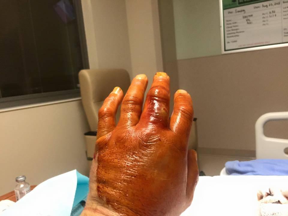 don's hand.jpg