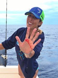 Ali Parks injury during fishing